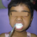 Prevention of Cavity - Fluoride use